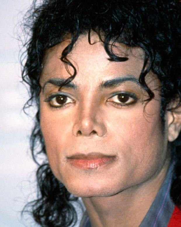 Michael Jackson Photo Gallery: On January 27, 1984, Michael suffered second-degree burns during a pyrotechnics stunt filmed for a Pepsi-Cola commercial. Jackson underwent treatment to hide the scars on his scalp, and had his third rhinoplasty shortly after. 1980's