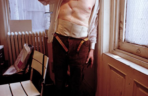 Andy Warhol: After being shot by feminist Valerie Solanas in 1968, Warhol took many photographs of his scarred torso, turning injury into art. (Photo by David Montgomery/Getty Images)