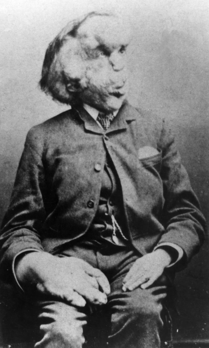The 'Real' Elephant Man: A Look at the Life of Joseph Merrick ...