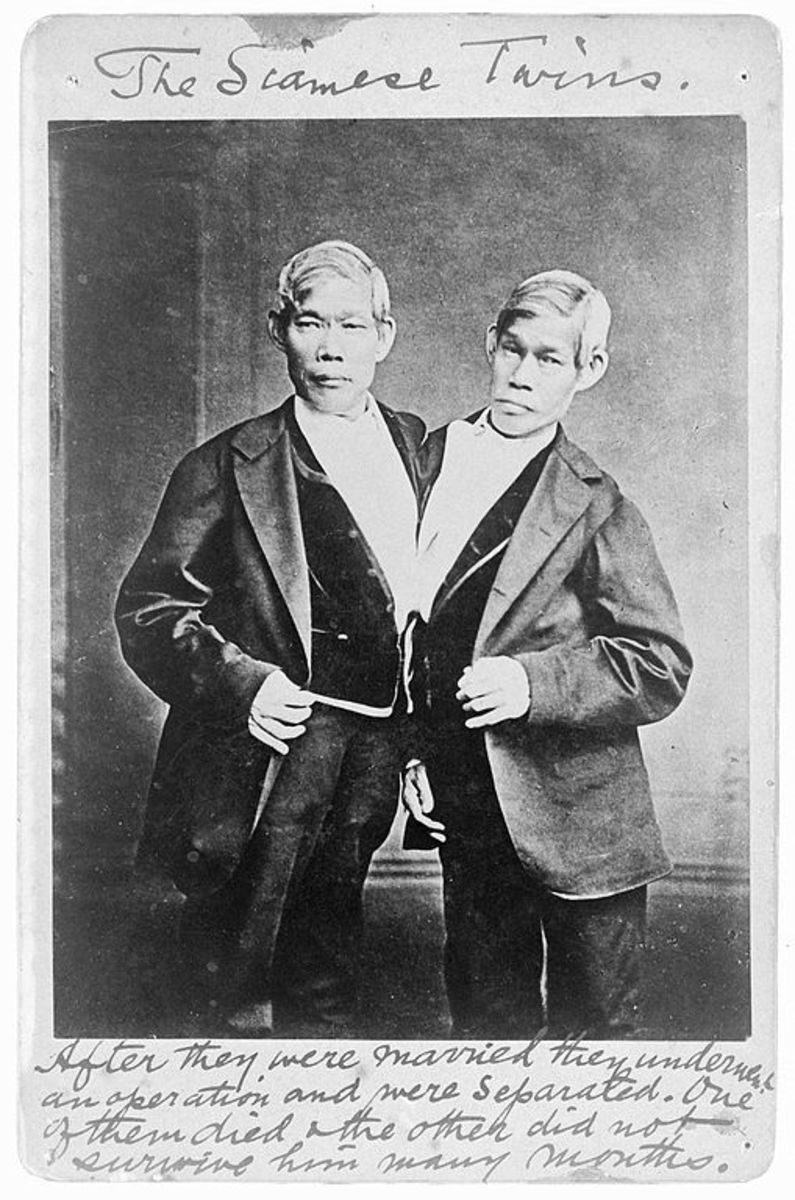 The Siamese Twins Photo